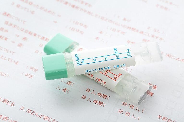 大腸ポリープは便検査だけでは診断が難しい!?